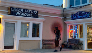 Tattoo, Decisions, and Laser: LASER TATTOO  REMOVAL  ATTOOS  Phal Sarcharh  OPE For those impulse decisions and immediate regrets