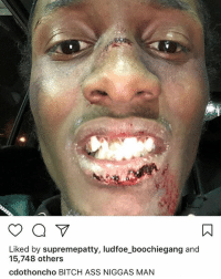 Ass, Bitch, and Memes: Liked by supremepatty, ludfoe_boochiegang and  15,748 others  cdothoncho BITCH ASS NIGGAS MAN Looks like CDotHoncho got jumped! 😳👀 @cdothoncho WSHH