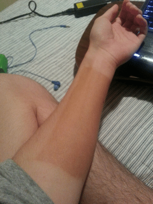 Fucking, Regret, and Tumblr: lindsaychrist:  prestoflauto:  troyesivan:  lindsaychrist:  gabriella13702:  lindsaychrist:  strawberryzachary:  lindsaychrist:  i put jergens natural glow on one part of my arm to see what would happen and now i regret it  Wow she really needs to shave her legs  im a fucking man #whyineedfeminism  I just need whatever u put on your arm… I don't tan at all… Ever.  i literally said what it was  this post is such a fucking mess  Is no one going to talk about the perfect rectanglular shape this thing makes on her arm  i literally said i was a man already why is this still happening