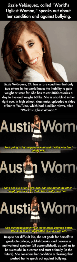 """Lizzie Velasquez, A Role Modelhttp://advice-animal.tumblr.com/: Lizzie Velásquez, called """"World's  Ugliest Woman,"""" speaks out about  her condition and against bullying.  %3D  Lizzie Velásquez, 24, has a rare condition that only  two others in the world have: the inability to gain  weight or store fat. She has to eat 5000 calories a  day to live and weighs 60 lbs. She is also blind in her  right eye. In high school, classmates uploaded a video  of her to YouTube, which had 4 million views, titled  """"World's Ugliest Woman.""""  AustigWom  Am I going to let the people who said, """"Kill it with fire,""""  define me?  Austh Wom  I can't see out of one eye, but I can see out of the other.  I might get sicka lot, but I have really nice hair.  AustiWome  Use that negativity in your life to make yourself better.  Use it, becauseI guarantee you, you will win.  Despite her difficult life, she set goals for herself: to  graduate college, publish books, and become a  motivational speaker (all accomplished), as well as to  be successful in a career and start a family (in the  future). She considers her condition a blessing that  pushed her to speak out against bullying. Lizzie Velasquez, A Role Modelhttp://advice-animal.tumblr.com/"""