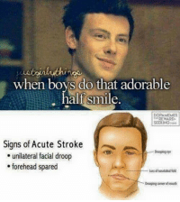 Dank, Watch Out, and Smile: lo that adorable  half smile,  half smle.  DOPAMEMES  REWARD-  SEEKING  Signs of Acute Stroke  Drooping eye  e unilateral facial droop  forehead spared  Loss of nasolabial fold  ring coner ofmt Watch out