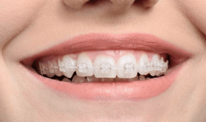 Lol, Tumblr, and Blog: lol-coaster:  Cosmetic Dentist in Stoke On Trent