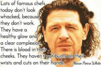Bloods, Memes, and Chef: Lots of famous chefs  today don't look  whacked, because  they don't work.  They have a  healthy glow and  a clear complexion  There is blood in their  cheeks. They haven Got burns on their  wrists and cuts on their hands  Marco Perre White Boom #Bitch