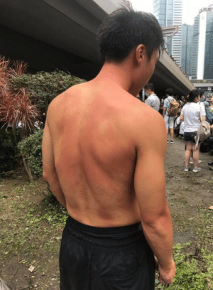 Protest, Hong Kong, and Got: Macau journalist got pepper sprayed when holding an interview with no intention of violence in Hong Kong protest