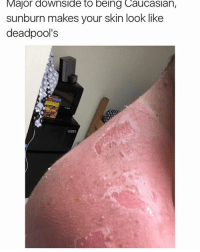 WAIT NO OFFENSE TO MY CAUCASIAN FOLLOWERS BUT IS THIS TRUE??: Major downside to being Caucaslan,  sunburn makes your skin look like  deadpool's WAIT NO OFFENSE TO MY CAUCASIAN FOLLOWERS BUT IS THIS TRUE??