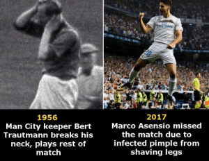 Match, Old, and Rest: mirates  2017  1956  Marco Asensio missed  Man City keeper Bert  Trautmann breaks his  the match due to  neck, plays rest of  match  infected pimple from  shaving legs Old vs modern footballers …