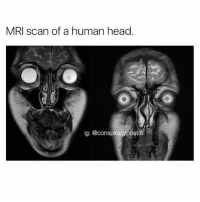 Creepy af: MRI scan of a human head  ig: @conspiracypost.S Creepy af