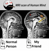 Twitter: BLB247 Snapchat : BELIKEBRO.COM belikebro sarcasm meme Follow @be.like.bro: MRI scan of Human Mind  XVIDEOS  BLACKEDCOM  RAZZER  Normal  Person  My  Friend Twitter: BLB247 Snapchat : BELIKEBRO.COM belikebro sarcasm meme Follow @be.like.bro