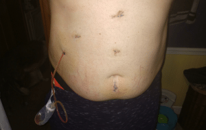 Aftermath of unscheduled gallbladder removal.: Mww.w  A  M  w. Aftermath of unscheduled gallbladder removal.