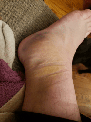 My ankle, badly sprained after my first time skiing. I was on crutches for a month and still cant do stairs well: My ankle, badly sprained after my first time skiing. I was on crutches for a month and still cant do stairs well