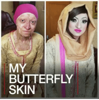 """repost @bbcnews - 28 MAR: Assya Shabir, from Birmingham, England, was born with a condition which makes her skin perilously fragile. Doctors told her parents she had 24 hours to live, yet she is now approaching her 30th birthday. Assya told the BBC how she feels """"blessed"""". For similar stories: bbc.in-facesofengland epidermolysisbullosa SkinCondition Health Birmingham England UK BBCShorts BBCNews @BBCNews @pmwhiphop: MY  BUTTERFLY  SKIN repost @bbcnews - 28 MAR: Assya Shabir, from Birmingham, England, was born with a condition which makes her skin perilously fragile. Doctors told her parents she had 24 hours to live, yet she is now approaching her 30th birthday. Assya told the BBC how she feels """"blessed"""". For similar stories: bbc.in-facesofengland epidermolysisbullosa SkinCondition Health Birmingham England UK BBCShorts BBCNews @BBCNews @pmwhiphop"""