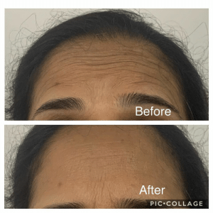 My skin after botox treatment: My skin after botox treatment
