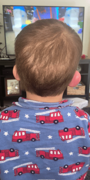 my son had a reaction to a mosquito bite on his ear.. can you tell which one?: my son had a reaction to a mosquito bite on his ear.. can you tell which one?