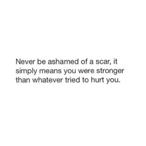 Never, Net, and Scar: Never be ashamed of a scar, it  simply means you were stronger  than whatever tried to hurt you. https://iglovequotes.net/