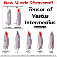 WE'VE DISCOVERED A NEW MUSCLE! Traditional models of the quadriceps have forever shown 4 muscles: . 🔼Rectus Femoris 🔼Vastus Lateralis (VL) 🔼Vastus Intermedius (VI) 🔼Vastus Medialis Obliquus (VMO) . But in 2016 a study by Grob et al., the researchers discovered and named a 5th muscle in the quadriceps group 😲, the TENSOR OF VASTUS INTERMEDIUS. The study dissected 26 cadavers and, in each one, they found the 5th quadriceps muscle. They also found that there were 4 types depending on where the tendon fused: Independent type, VI type, VL type, and Common type. There was also a variation found with two muscle bellies as you can see above. It originates on the front of the greater trochanter of the femur with a small muscle belly and then extends a long tendon that joins into the 🕸 fascia between the VI and VL before layering deep into the quad tendon. The function of the muscle is not fully known yet, but what we do know is that it tenses the distal tendon of the VI and makes the VI line of pull to be more towards the ↗↖ midline like that of the VMO. I think it's amazing that our knowledge of the 💀 human body continues to grow and change. We know so much but still have so much left to learn. Tag your favorite 🤓 Myonerd and share the wealth! ScienceIsCool AlwaysLearning Myodetox: New Muscle Discovered!  Tensor of  RF  RF  TVI  Vastus  VI  Intermedius  VMO  VMO  @drjacob harden  Old Model  New Model  2 Belly  Independent  Common  VL Type  Type  rype  Type  Grob et al. A newly discovered muscle: The tensor of the vastus intermedius. Journal Clinical Anatomy (2016) WE'VE DISCOVERED A NEW MUSCLE! Traditional models of the quadriceps have forever shown 4 muscles: . 🔼Rectus Femoris 🔼Vastus Lateralis (VL) 🔼Vastus Intermedius (VI) 🔼Vastus Medialis Obliquus (VMO) . But in 2016 a study by Grob et al., the researchers discovered and named a 5th muscle in the quadriceps group 😲, the TENSOR OF VASTUS INTERMEDIUS. The study dissected 26 cadavers and, in each one, they found the 5th qua