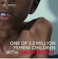Ali, Memes, and Suffering: News  ONE OF 2.2 MILLION  YEMENI CHILDREN  WITH 2.2m children are now suffering from malnutrition in Yemen.  Muhannad Ali, 5, is just one of them.