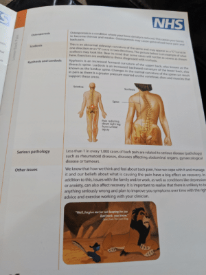 """Advice, Apparently, and Bad: NHS  Osteoporosis is a condition where  r bone density is reduced, This  to become thinner and weaker. Osteoporosis may cause generalised your bones  Osteoporosis  back pain.  This is an abnormal sideways curvature of the spine and may appear as a """"C""""curve  pain and  eain  scoliosis may nScurve in two directions. The r  Bear in mind that some cases v  Scoliosis  re below is an example of what  ur  here. Exercises are available to those diagnosed with scoliosis.  t be as severe as shown  Kyphosis is an  thoracic spine, Lo ed forward curvature of the upper b  s  Kyphosis and Lordosis  known as the lumbar an increased backward curvature also known as the  e lower back, also  Changes in the normal curvature of th  sn  ne can result  in pain as there is a greater pressure exerted on the vertebrae, discs and muscles that  support these areas.  Sciatica  Scoliosis  Spine  Pain radiating  down right leg  from lumbar  Less than 1 in every 1,000 cases of back pain are related to serious disease (pathology)  such as rheumatoid diseases, diseases affecting abdominal organs, gynaecological  Serious pathology  disease or tumours.  We know that how we think and feel about back pain, how we cope with it and manage  Other issues  t and our beliefs about what is causing the pain have a big effect on recovery. In  addition to this, issues with the family and/or work, as well as conditions like depression  or anxiety, can also affect recovery. It is important to realise that there is unlikely to be  anything seriously wrong and plan to improve you symptoms over time with the righ  advice and exercise working with your clinician.  """"Well, forgive me for not leaping for joy  Bad back, you know.""""  Scar, from The Lion King  er Back Pain Apparently Scar is now a spokeslion for backpain?"""