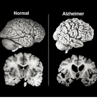 Football, Head, and Life: Normal  Alzheimer ~~ALZHEIMER'S DISEASE~~ (via @mdhealthtips) . A healthy brain (left) compared to that in Alzheimer's disease (right). Alzheimer's disease is a chronic neurodegenerative disease and the cause of 60-70% of dementia cases 📝. Notice the loss of cortex in the Alzheimer's brain on the right, seen by the deepening of sulci (the valleys between folds in the brain) and enlargement of brain ventricles ☝️ . While much active research goes into Alzheimer's disease today, we've yet to identify a cause nor do we have a cure 🏥. One thing that we do know is that head trauma (especially repeated head trauma) does correlate with earlier onset of Alzheimer's disease later in life. In fact, repeat head trauma can lead to its own entity in dementia, known as chronic traumatic encephalopathy, and is particularly prevalent among American football players. Wearing our helmets is key 🔑 (as is rethinking the brutality of the sport! 😁) . science alzheimers health helmetfordays 🚴🚴🚴