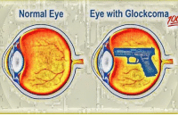 Always stay strapped: Normal Eye  Eve with Glockcoma  700  g Always stay strapped