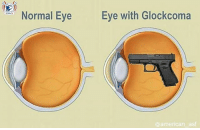 How about a few puns to break the eyes? 👀: Normal Eye  Eye with Glockcoma  @american asf How about a few puns to break the eyes? 👀