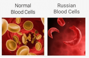 Hammer and sickle cell anemia, amirite?: Normal  Russian  Blood Cells  Blood Cells Hammer and sickle cell anemia, amirite?