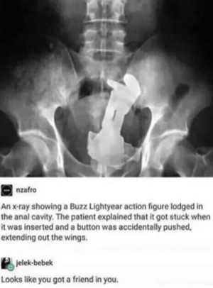 Memes, Anal, and Patient: nzafro  An x-ray showing a Buzz Lightyear action figure lodged in  the anal cavity. The patient explained that it got stuck when  it was inserted and a button was accidentally pushed,  extending out the wings.  jelek-bebek  Looks like you got a friend in you. I can't breathe via /r/memes https://ift.tt/2QWE7Bt