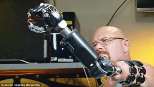 futurismnews:  Groundbreaking Robotic Prosthetic Attaches to Implant in Patient's Bone    This mind-controlled, robotic arm attaches to an implant inserted directly into the bone at the end of the remaining part of the limb. See it in action: http://futurism.com/links/groundbreaking-robotic-prosthetic-attaches-implant-patients-bone/  : O Johns Hopkins University futurismnews:  Groundbreaking Robotic Prosthetic Attaches to Implant in Patient's Bone    This mind-controlled, robotic arm attaches to an implant inserted directly into the bone at the end of the remaining part of the limb. See it in action: http://futurism.com/links/groundbreaking-robotic-prosthetic-attaches-implant-patients-bone/