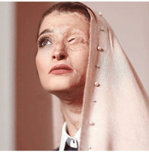 Marriage, News, and Social Media: palomaisnothere: sixpenceee:  Marzieh Ebrahimi, survivor of the 2014 serial acid attacks on women in Esfahan, Iran. Back in 2014, Marzieh had an appointment with a dentist and was stuck in traffic in the central Iranian province of Isfahan. She rolled down her car's window only to see a huge volume of pure acid splashed on her face.Unfortunately, she lost part of her face and the cornea of an eye in the acid attack. She is now happily married and the news of her marriage made headlines in media, particularly in social media. (Source)  A queen