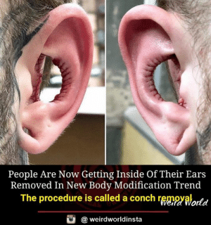 conch: People Are Now Getting Inside Of Their Ears  Removed In New Body Modification Trend  The procedure is called a conch rggngyalortd  @ weirdworldinsta