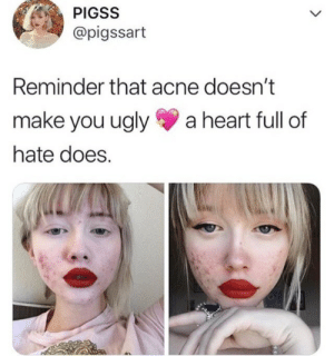 fanwolfgirl:  iwilleatyourenglish:  miss-andrie:  I'm sure I'd feel the same way if I was a skinny white girl with blue eyes and blonde hair   this girl posted a picture featuring her cystic acne uncovered, something that's extremely stigmatized, in order to make a statement and spread positivity. that's it. that's all she did. she didn't say she was the face of people with acne or act like she has it harder than other people. she just shared a feature that i'm sure she's been shamed for and has struggled to love. she's literally 17-years-old and you're 27. stop being a dick to kids when they haven't done anything wrong.   THANK YOU. shit.  : PIGSS  L  @pigssart  Reminder that acne doesn't  make you ugly  a heart full of  hate does. fanwolfgirl:  iwilleatyourenglish:  miss-andrie:  I'm sure I'd feel the same way if I was a skinny white girl with blue eyes and blonde hair   this girl posted a picture featuring her cystic acne uncovered, something that's extremely stigmatized, in order to make a statement and spread positivity. that's it. that's all she did. she didn't say she was the face of people with acne or act like she has it harder than other people. she just shared a feature that i'm sure she's been shamed for and has struggled to love. she's literally 17-years-old and you're 27. stop being a dick to kids when they haven't done anything wrong.   THANK YOU. shit.