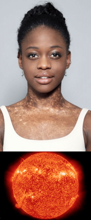 poisonedinsanity:  wanderfckinglust:  this woman with Vitiligo has skin that resembles the surface of the sun– and it is the most beautiful thing I have ever seen.  She is so pretty! : poisonedinsanity:  wanderfckinglust:  this woman with Vitiligo has skin that resembles the surface of the sun– and it is the most beautiful thing I have ever seen.  She is so pretty!