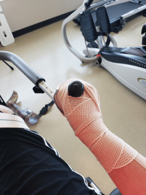 Post brain surgery rehab. My hand doesn't work so they taped it up so I could…firmly grasp it.: Post brain surgery rehab. My hand doesn't work so they taped it up so I could…firmly grasp it.