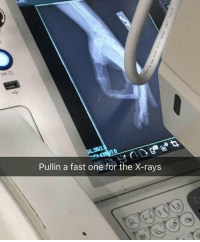 Dank Memes, One, and Fast: Pullin a fast one for the X-rays