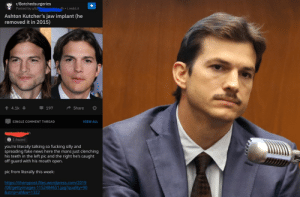 Fake, Fucking, and News: r/Botchedsurgeries  Posted by u/b mn4h i.redd.it  Ashton Kutcher's jaw implant (he  removed it in 2015)  4.1k  197  Share  VIEW ALL  SINGLE COMMENT THREAD  S 1 Award  you're literally talking so fucking silly and  spreading fake news here the mans just clenching  his teeth in the left pic and the right he's caught  off guard with his mouth open.  pic from literally this week:  http://thenypost.files.wordpress.com/2019  /08/gettyimages-1152484651.jpg?quality-90  &strip=all&w-1322 Intentionally spreading misinformation
