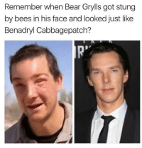 - Trending Memes/Donnie: Remember when Bear Grylls got stung  by bees in his face and looked just like  Benadryl Cabbagepatch? - Trending Memes/Donnie
