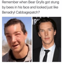 Now that's hilarious 😂 @drgrayfang: Remember when Bear Grylls got stung  by bees in his face and looked just like  Benadryl Cabbagepatch? Now that's hilarious 😂 @drgrayfang