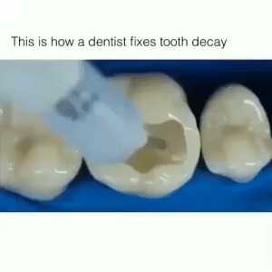 RT @learnthngs: This is how dentist fixed tooth decay: https://t.co/gTLBiyaKZe: RT @learnthngs: This is how dentist fixed tooth decay: https://t.co/gTLBiyaKZe