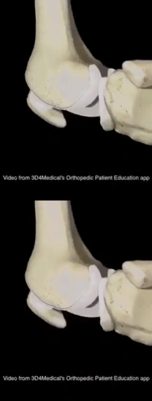 RT @learnthngs: This is how permanent knee joint ache is fixed: https://t.co/b7mua4eqNr: RT @learnthngs: This is how permanent knee joint ache is fixed: https://t.co/b7mua4eqNr