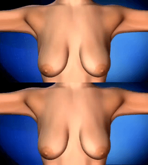 RT @MedicaIvideo: Cosmetic Breast Surgery https://t.co/4yPLj2mXLN: RT @MedicaIvideo: Cosmetic Breast Surgery https://t.co/4yPLj2mXLN