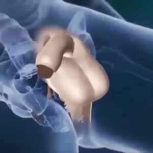 RT @MedicaIvideo: Sex change surgery (Transsexed). https://t.co/lE9ykTKD14: RT @MedicaIvideo: Sex change surgery (Transsexed). https://t.co/lE9ykTKD14