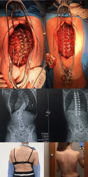 RT @THEHEALTHVIDS: Scoliosis surgery, before and after. https://t.co/opU2OY3hEx: RT @THEHEALTHVIDS: Scoliosis surgery, before and after. https://t.co/opU2OY3hEx