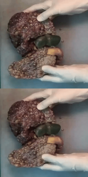 RT @THEHEALTHVIDS: Wondering why this liver looks all discolored & full of nodules?! Blame it on the alcohol fam! https://t.co/zwEVnv244O: RT @THEHEALTHVIDS: Wondering why this liver looks all discolored & full of nodules?! Blame it on the alcohol fam! https://t.co/zwEVnv244O
