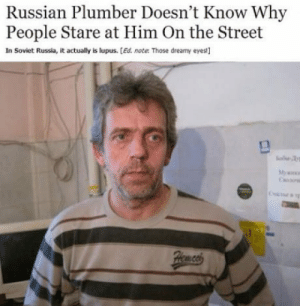 Its never lupus: Russian Plumber Doesn't Know Why  People Stare at Him On the Street  In Soviet Russia, it actually is lupus. [Ed. note Those dreamy eyes] Its never lupus