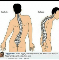 Memes, Shit, and Smh: Scoliosis  Kyphosis  iggyNikku damn nigga jus having fun on the dance floor and yall  WebMd'd the shit outta him smh  11 minutes ago Like 715