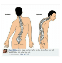 Jiggy, Trendy, and Scoliosis: Scoliosis  Kyphosis  Jiggy Nikku damn nigga jus having fun on the dance floor and yall  WebMd'd the shit outta him smh  11 minutes ago Like 715 We got out early today and I was supposed to leave early but I wanted to go to 7eleven so I just told my ride to leave without me but then my card declined so I couldn't even buy anything so now im waiting for my mom who could be an hour away -x