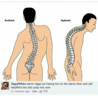 Jiggy, Trendy, and Scoliosis: Scoliosis  Kyphosis  Jiggy Nikku damn nigga jus having fun on the dance floor and yall  WebMd'd the shit outta him smh  11 minutes ago Like K 715 I have the best day planned with my boyfriend I'm so excited!!!!