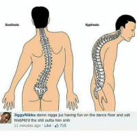Memes, Shit, and Smh: Scoliosis  Kyphosis  Jiggy Nikku damn nigga jus having fun on the dance floor and yall  WebMd d the shit outta him smh  11 minutes ago Like 715 YJOD MAD ME PEE @morningpriest
