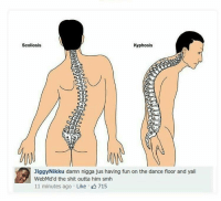 Blackpeopletwitter, Funny, and Shit: Scoliosis  Kyphosis  JiggyNikku damn nigga jus having fun on the dance floor and yall  WebMd'd the shit outta him smh  11 minutes ago Like 715