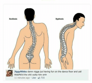 Shit, Smh, and Http: Scoliosis  Kyphosis  JiggyNikku damn nigga jus having fun on the dance floor and yal  WebMd'd the shit outta him smh  11 minutes ago Like 715 y'all really cant let a nigga live smh http://ift.tt/2kwt026
