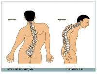 Step, Scoliosis, and Template: Scoliosis  Kyphosis  STEP TO PG-MD/MS  DR.AKIF A.B